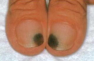 Pseudomonas Nail Infection