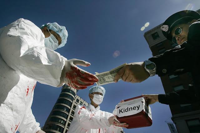 Ternyata Segini Harga Setiap Organ Tubuh yang Kita Punya