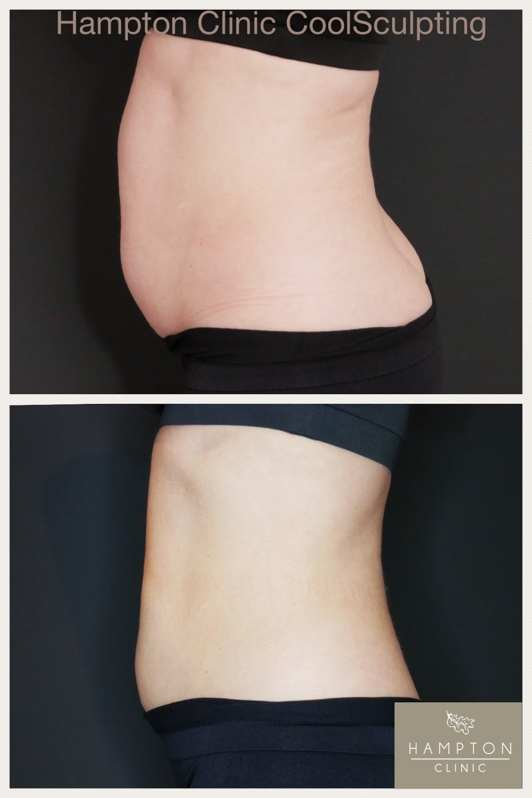 Coolsculpting before and after from Hampton Clinic \ profile view