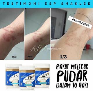 Review Makan Produk Suplemen Berpantang dan Skincare Shaklee