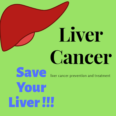 Liver-cancer-prevention-and-treatment