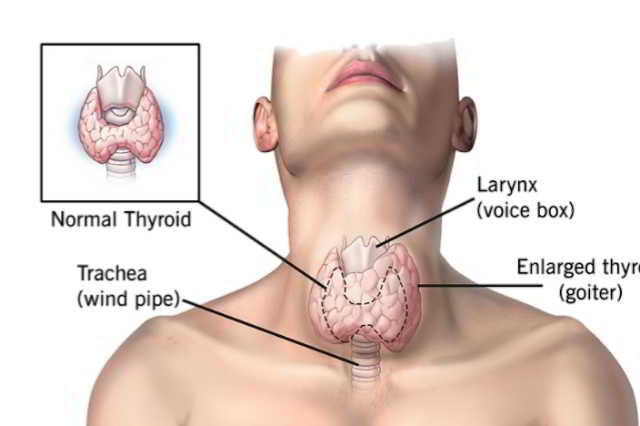 If Thyroid is not controlled in time, it may cause a disease like Sugar. See what to eat and what not to eat in Thyroid.