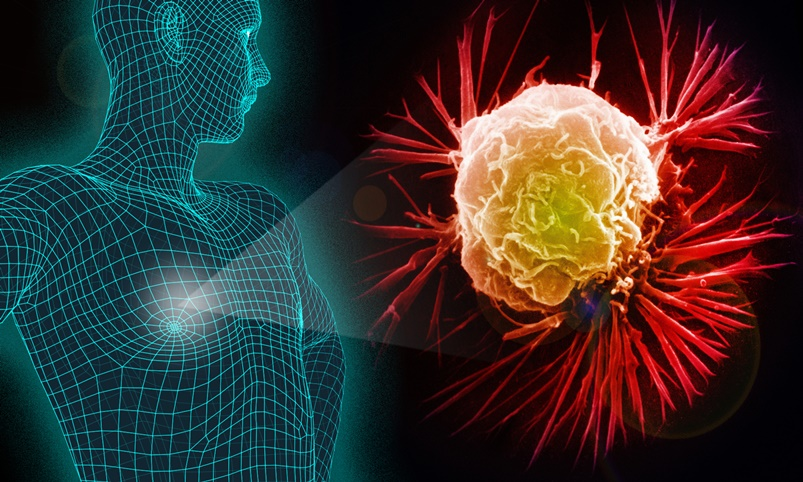 Câncer de mama sintomas, diagnóstico e tratamento