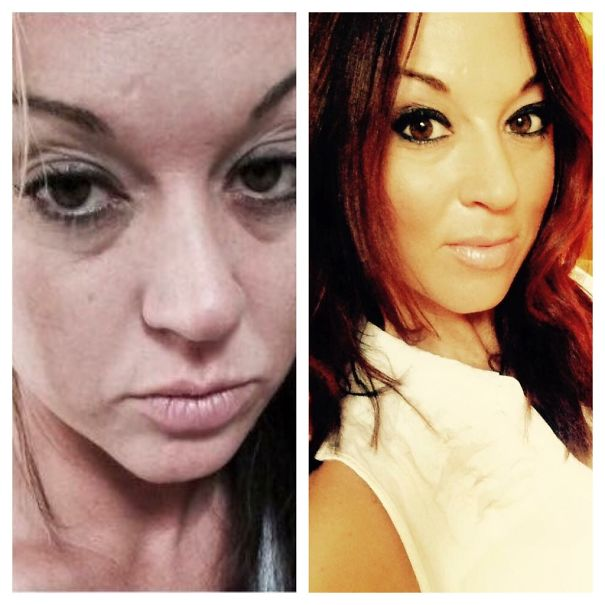 10+ Before-And-After Pics Show What Happens When You Stop Drinking - 15 Months Sober