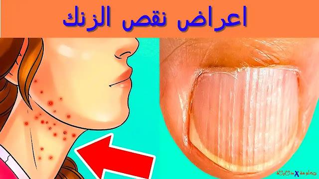 اعراض نقص الزنك