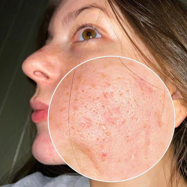 3 masques pour se débarrasser des cicatrices d'acné