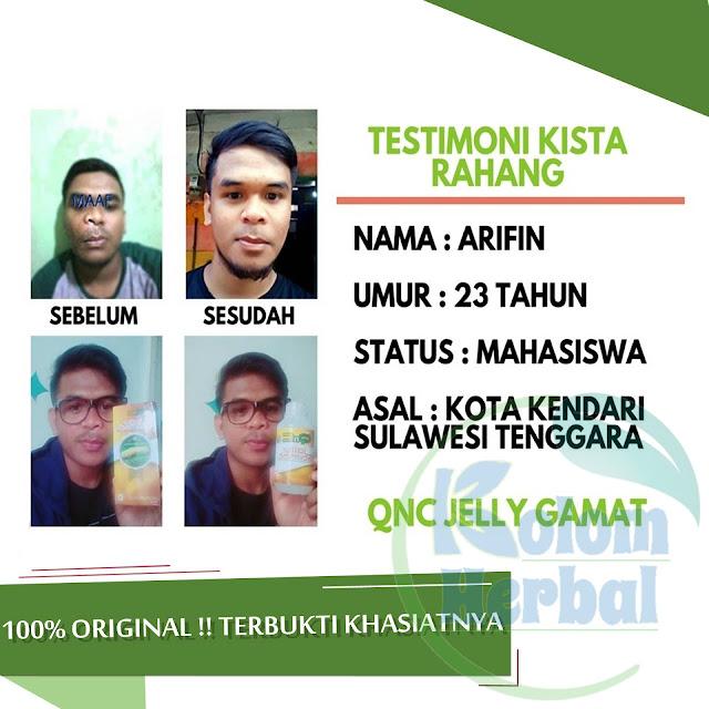Harga QnC Jelly Gamat Original