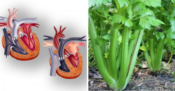 Celery - The Top 15 Reasons You Should Be Eating Celery Every Day