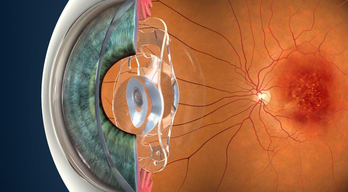 Proteggere la vista con le arance, ottime alleate contro la degenerazione maculare.