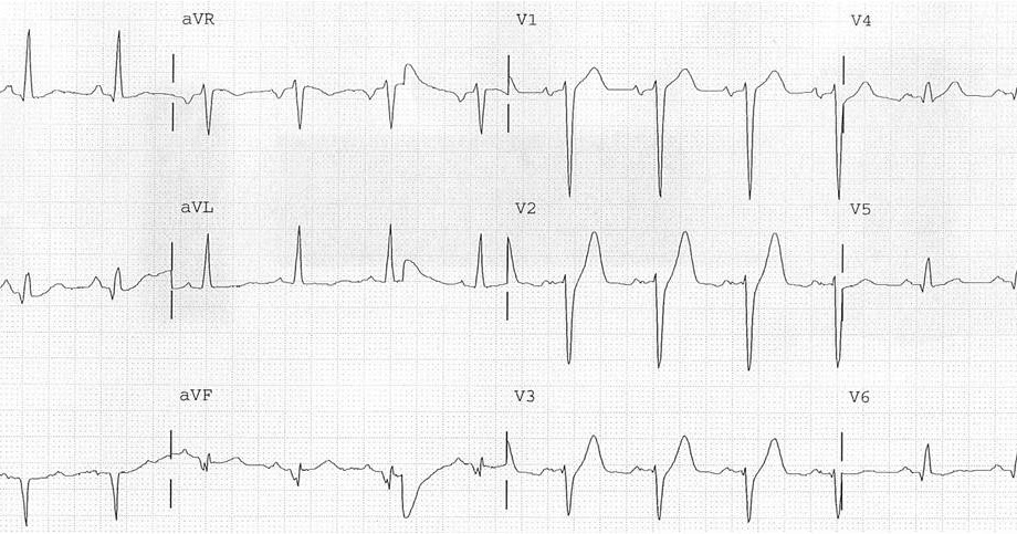 Dr. Smith's ECG Blog: Timing of revascularization in