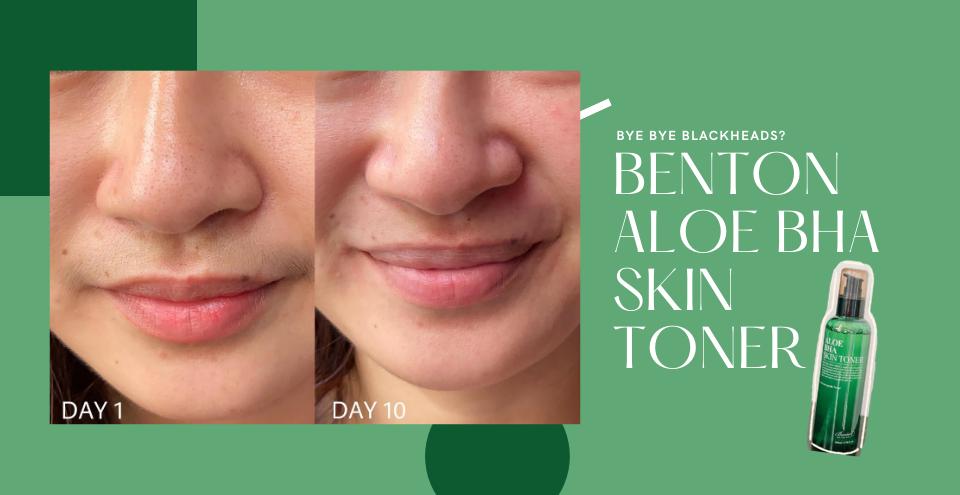 Quick Review: Benton Aloe BHA Skin Toner