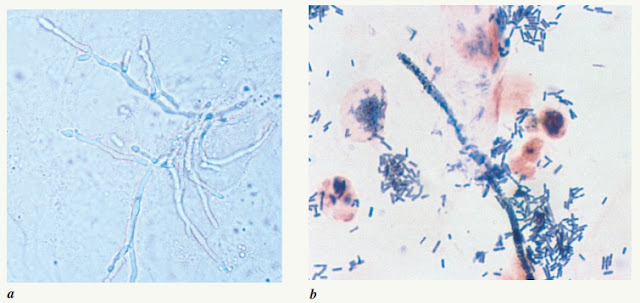 Microscopic findings in vulvovaginal candidiasis