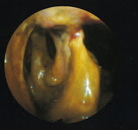 "Endoscopic photograph of mucoid plaque. Its from the fourth edition of ""Clinical Gastroenterology"" by Howard M. Spiro."