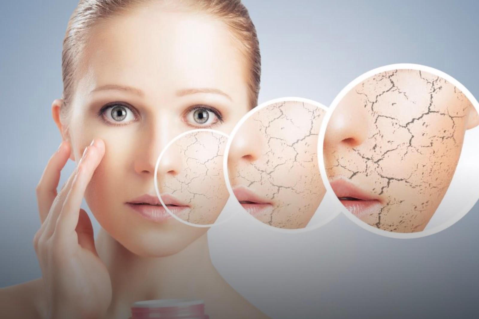 Dermatite Péri Orale Quelles Solutions