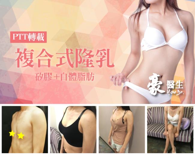 【素人分享-PTT】魔滴隆乳+自體脂肪移植-複合式隆乳