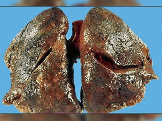 Shocking revelation: After autopsy study of 6 bodies of Corona in Rajkot, the doctor said, the whole lung in Corona turned to stone.