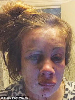 2 times to the year ago teen mother beaten