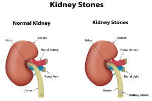 How To Get Rid Of Kidney Stones Pain?