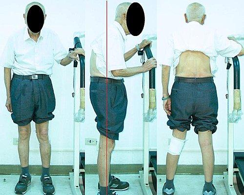 駝背治療, 駝背矯正,  脊椎側彎, 脊椎側彎治療, 脊椎側彎矯正, 脊椎側彎治療方法, 脊椎側彎復健