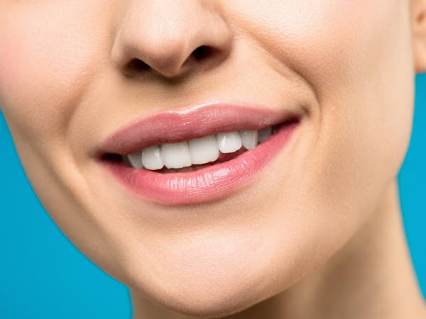 Dental Implants in Melbourne; Four Key Benefits