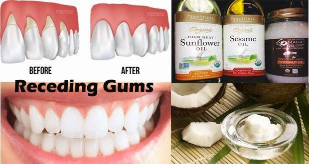 Natural Home Remedies for Receding Gums