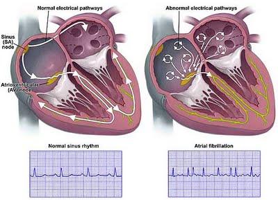 bidang katup jantung ppt