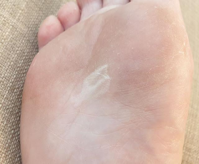 exfoliere picioare