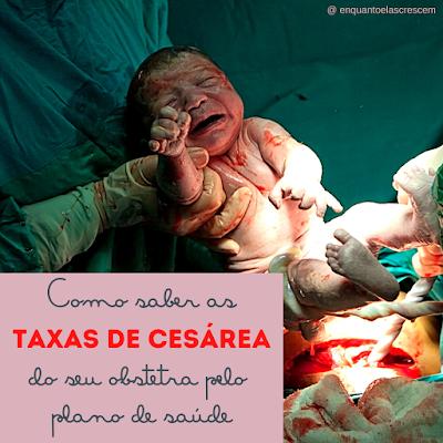 Como saber as taxas de cesárea do seu obstetra