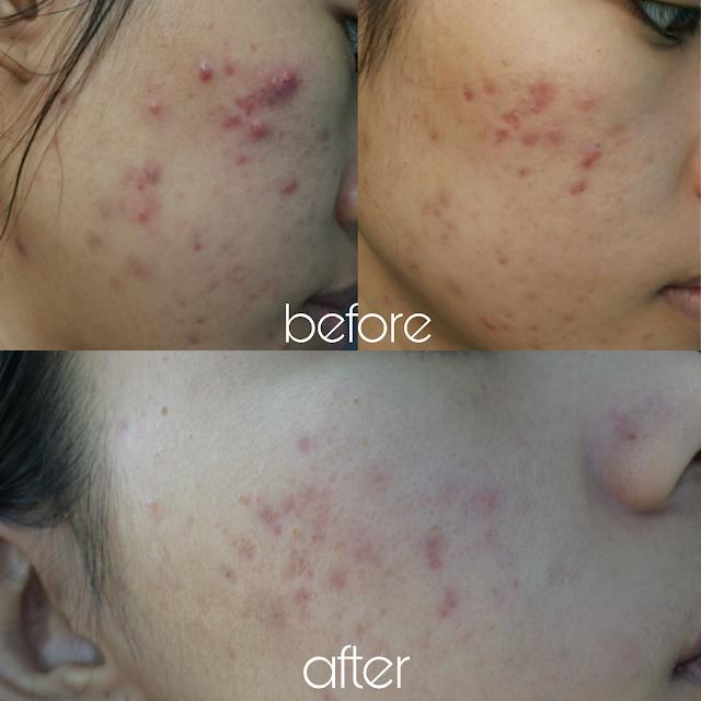 Hasil pakai Envygreen Acne Care Series