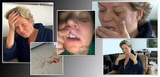 Deputada Joice Hasselmann acorda com fraturas no corpo, diz não se lembrar do que houve e suspeita de atentado