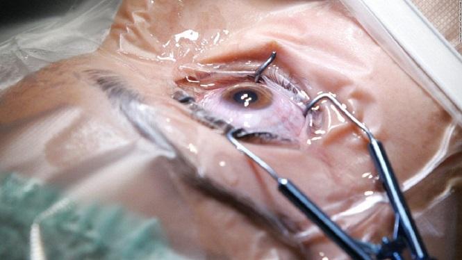 Realizarán cirugías de cataratas gratuitas a adultos mayores de San Rafael