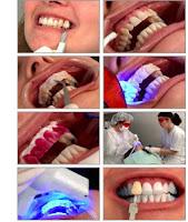 blanqueamiento luz laser dental