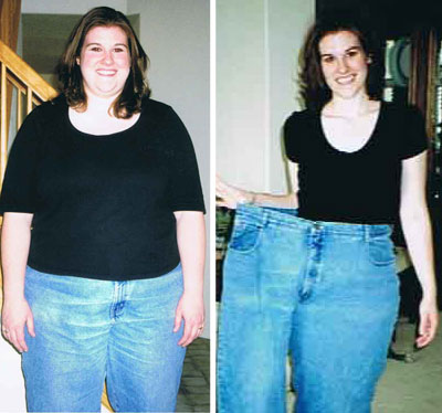 homeo for weight loss