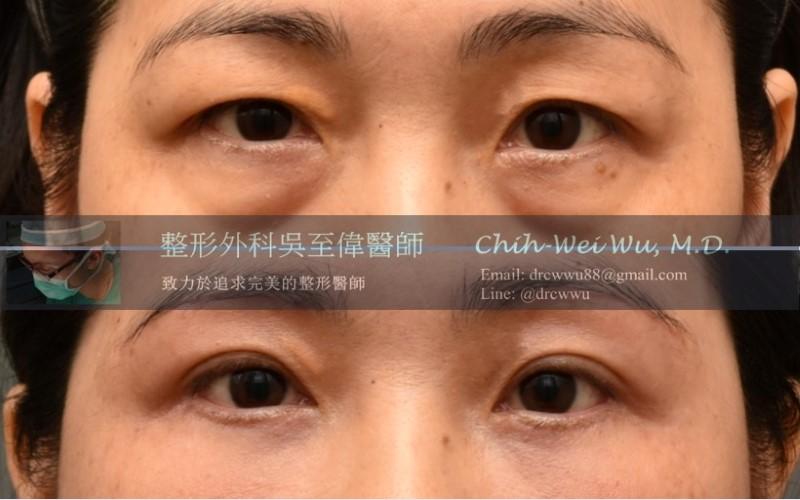 眼袋手術推薦案例-1