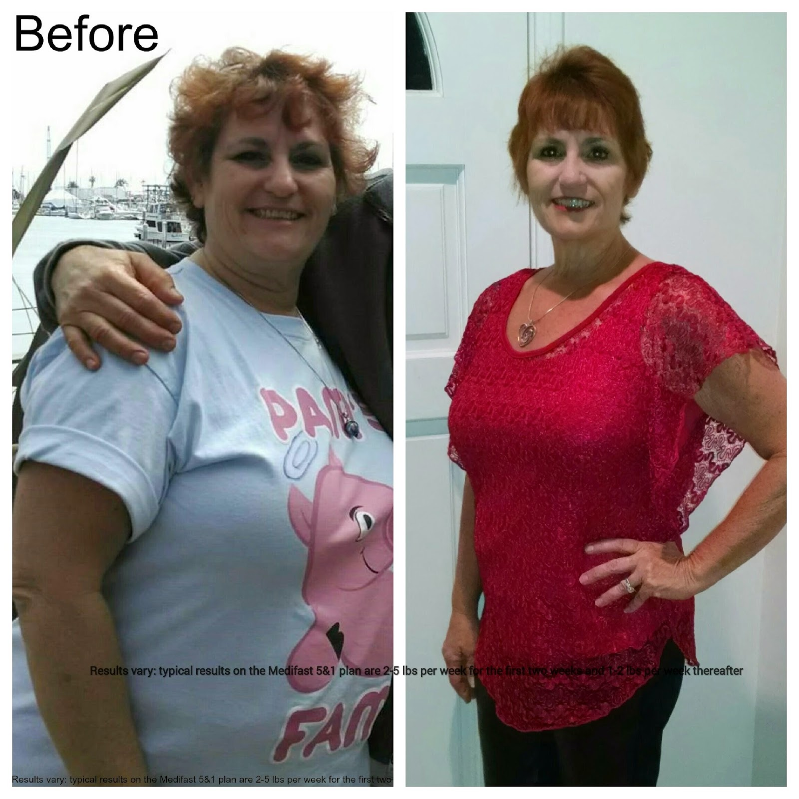 Diet Skeptic Medifast After Gastric Bypass Surgery