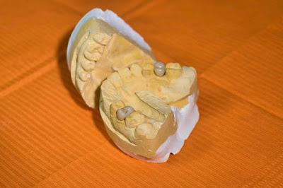 cara membersihkan karang gigi membandel
