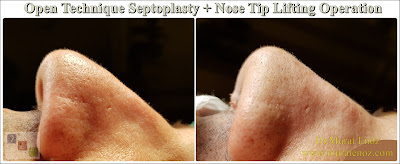 Open technique septoplasty in İstanbul - Nose tip lifting in İstanbul - Open tecnique septoplasty operation - Open technique nose tip plasty in İstanbul - Open technique nose tip lifting in Turkey - Nose tip drooping - Open technique nasal septum correction surgery - Septum deviation surgery - Treatment of nose tip droops - Treatment of nasal tip droop when smiling - Nose tip droops when smiling - Droopy nose tip surgery