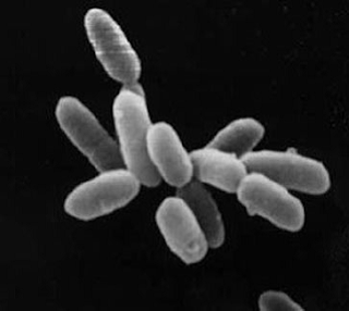 https://www.easybiologyworld.com/2020/01/what-are-archaebacteria.html