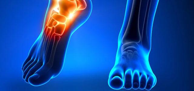 Resiko Menderita Infeksi Tulang Kronis