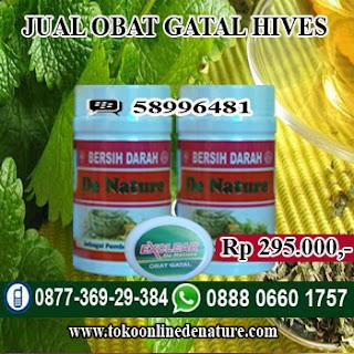 JUAL OBAT GATAL HIVES