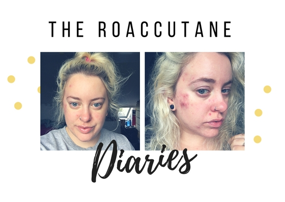 The Roaccutane Diaries