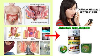 Daftar obat daging/benjolan atau daging tumbuh di anus di semua apotik