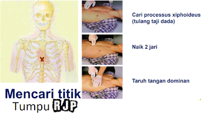 Resusitasi Jantung Paru (RJP)