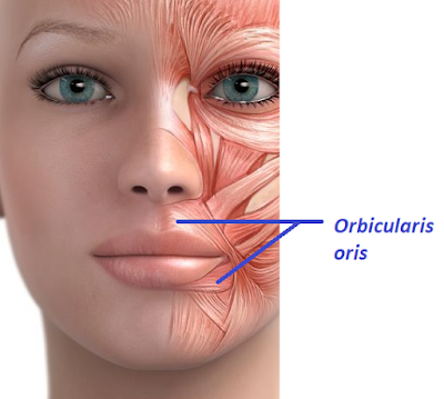 Vertical lip lines orbicularis oris