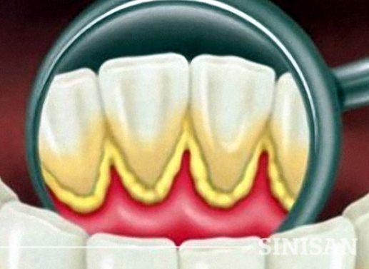 Cara Menghilangkan Karang Gigi Yang Sudah Mengeras Dan Parah