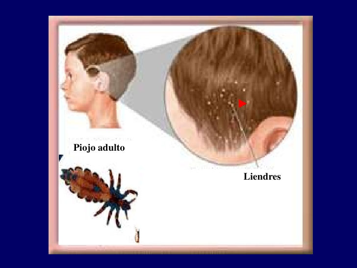me pica la cabeza después del tratamiento de piojos