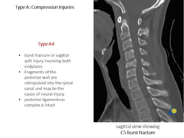 Type A AO Classification Cervical Spine Injries