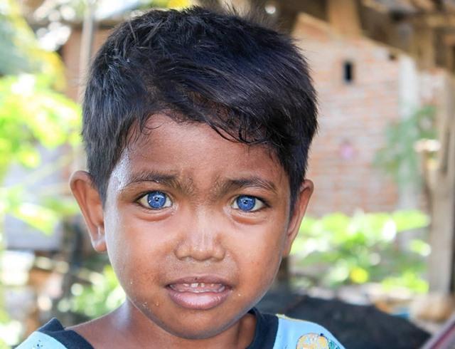 Fardan Bocah Bermata Biru Asal Sulawesi - IGxaverius_endro