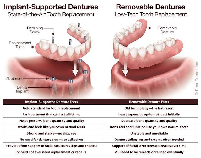 implant-supported-dentures-vs-removable-nha-khoa-thuan-kieu