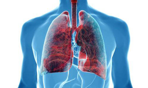 Lung cancer symptoms in men signs that often occurs